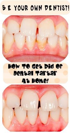 How To Be Your Own Dentist – Here Are Some Tricks To Get Rid Of Dental Tartar At Your Home!