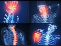 What is rheumatoid arthritis (RA)? Learn about juvenile rheumatoid arthritis. Discover rheumatoid arthritis (RA) symptoms, diagnosis, and treatment. Rheumatoid Arthritis Pictures, Juvenile Rheumatoid Arthritis, Yoga For Arthritis, Natural Remedies For Arthritis, Rheumatoid Arthritis Treatment, Arthritis Relief, Herbal Remedies, Ra Symptoms, Disease Symptoms