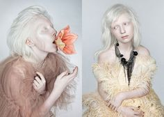 Nastya Zhidkova beautiful albino model by Danil Golovkin in Wild Flower for Fashion Gone Rogue Beauty Editorial, Editorial Fashion, Modelo Albino, Albino Girl, Albino Model, Glamour, Floral Fashion, Blushes, Wild Flowers