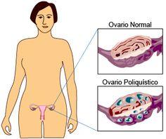 SAIKU ALTERNATIVO: Remedios Naturales : Ovarios Poliquísticos