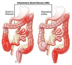 Inflammatory bowel disease encompasses two idiopathic, chronic, inflammatory diseases: Crohn's disease and ulcerative colitis. Crohn's disease and ulcerative colitis are disorders of unknown cause, involving genetic and immunological influence on the gastrointestinal tract's ability to distinguish foreign from self-antigens. They share many overlapping epidemiological, clinical, and therapeutic characteristics. In some patients it is not possible to distinguish which form of inflammatory…