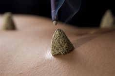 Chinetskyu - a type of Japanese specialized moxibustion