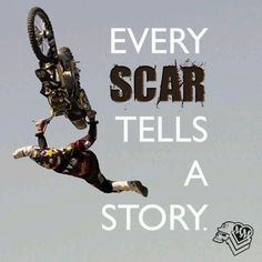 Scars no point in riding if u don't take a chance! Let go of ur fears and feel that freedom there's nothin like it!!