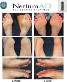 Nerium AD... Never thought to use a face cream on feet!!!  www.wenda.nerium.com