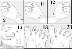 #acupressure #reflexology points to treat #insomnia