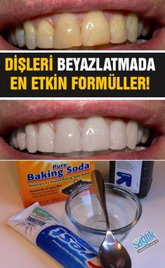 Dişçiye gitmeden tartar temizlemede ve dişleri beyazlatmada en etkili formüller!