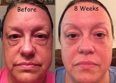 An amazing before and after pic of this woman after using the Rodan and Fields Redefine regimen! If you want these results, message me! Want extra income, or looking for a new profession? Let's talk!!
