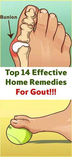 Top 14 Effective Home Remedies For Gout – Allmondo Lifestyle - Health Nacks Home Remedies For Gout, Gout Remedies, Natural Health Remedies, Herbal Remedies, Hair Remedies, Good Health Tips, Health And Beauty Tips, Healthy Tips, Health And Wellness