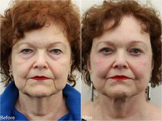 5 weeks post ops Eyelids surgery #blepharoplasty @DrDarm AestheticMedicine  www.drdarm.com Results may vary.