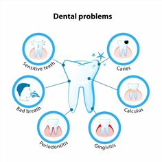 dental problem Poster Tooth disease: sensitive teeth caries calculus gingivitis periodontitis and bad breath Poster. Teeth Health, Dental Health, Oral Health, Dental Care, Top Dental, Dental Logo, Dental Hygiene School, Dental Humor, Dental Procedures