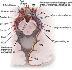 Microsurgical Management of Posterior Fossa Vascular Lesions Gross Anatomy, Brain Anatomy, Medical Anatomy, Anatomy And Physiology, Radiology Student, Radiology Imaging, Nervous System Anatomy, Cardiac Nursing, Medicine Student