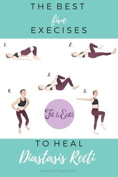 The best 5 exercises to help heal Diastasis Recti. Post Baby Workout, Tummy Workout, Pregnancy Workout, Post Pregnancy, Fat Workout, Cardio Workouts, Exercices Diastasis Recti, Healing Diastasis Recti, After C Section Workout