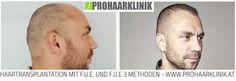 Haartransplantation, Haarverpflanzung Resultat