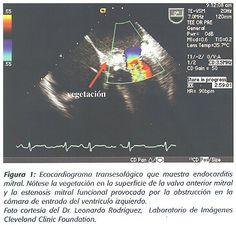 Revista Costarricense de Cardiología - Diagnóstico y manejo de la endocarditis infecciosa
