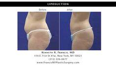 Check out Kenneth R. Francis, MD #Liposuction 114 E 71st St # 1w, New York, NY 10021 (212) 226-0677 #SmartLipo #LaserLipo #plasticsurgery #plasticsurgeon