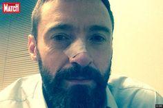 Hugh Jackman a fait savoir qu'il s'était fait retirer une nouvelle cellule cancéreuse sur le nez, six mois après une première intervention similaire.