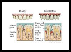 Healthy Gums vs Periodontitis