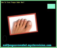 How to treat fungus under nail - Nail Fungus Remedy. You have nothing to lose! Visit Site Now