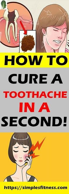A toothache can be really painful and frustrating when it occurs. Sometimes it may become even unbearable. Remedies For Tooth Ache, Cure Tooth Ache, Receding Gums, Oral Surgery, Best Oral, Hair Loss Remedies, Oral Hygiene, Oral Health, Health Care