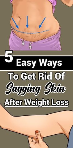 5 easy ways to get rid of sagging skin after weight loss - Exercise - Health Weight Loss Challenge, Weight Loss Goals, Best Weight Loss, Weight Gain, Challenge Week, Weight Loss For Women, Reduce Weight, Weight Loss Journey, Weight Lifting