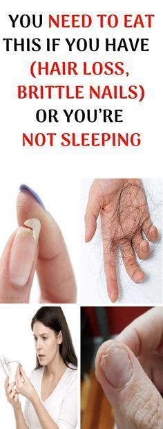 You Need To Eat This If You Have Hair Loss, Brittle Nails or You're Not Sleeping - Full Body Coaching Adrenal Glands, Adrenal Fatigue, Adrenal Cortex, Tongue Health, Oil For Hair Loss, Brittle Nails, Hair Loss Remedies, Allergies, Natural Remedies