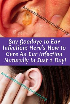 Say Goodbye to Ear Infection! Here's How to Cure An Ear Infection Naturally in Just 1 Day! Natural Ear Infection Remedy, Boil In Ear, Liquid Waste, Healthy Tips, Healthy Nutrition, Health Care Reform, Saying Goodbye, Health And Beauty Tips