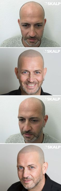 Which clinic has the best hair tattoo treatment? Skalp clinics are known for the most natural hairline tattoo results. Visit our gallery for more scalp micro pigmentation results #scalpmicropigmentation #doesscalpmicropigmentationlookreal #beforeandaftersmp #smp #hairlosscure #menscosmeticsurgery #hairthinning #shavedheads #baldmen #headtattoo