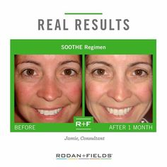 Do you have sensitive skin?  If you said yes, Soothe can help.  After 2 weeks of Soothe use, 67% of participants had a decrease in redness, 80% had a decrease in peeling, 74% had a decrease in dryness, 90% had a decrease in stinging and 72% of participants experienced a decrease in overall irritation.  Give your skin a break!
