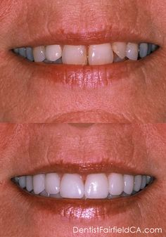 More results from Mark Warner DDS - Before & After: With porcelain veneers, bonding and teeth whitening available cosmetic dentistry is virtually limitless.