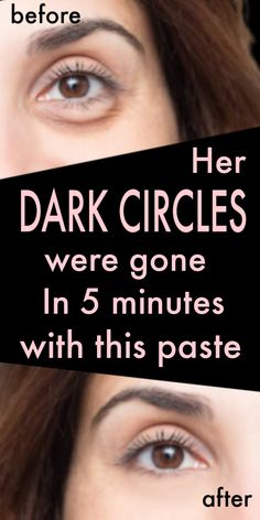 She applied this paste on her dark circles, in 5 minutes all dark circles were gone ! She Applied This Paste On Her Dark Circles, In 5 Minutes All Dark Circles Were Gone ! Beauty Tips For Skin, Beauty Skin, Skin Care Tips, Beauty Hacks, Beauty Care, Skin Tips, Natural Beauty, Dry Eyes Causes, Dark Circles Under Eyes