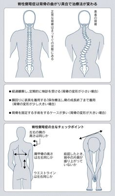 脊柱側弯症、成長期に用心 背骨曲がり重度で手術  ヘルス NIKKEI STYLE
