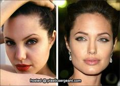angelina jolie- after her nose job! - - angelina jolie- after her nose job! angelina jolie- after her nose job Angelina Jolie Nose Job, Angelina Jolie Plastic Surgery, Celebrity Plastic Surgery, Celebrities Before And After, Operation, Neutral Makeup, Lip Injections, No Photoshop, Contour Makeup