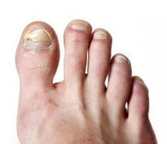 Want to Cure Toenail Fungus? You have to Read this Article. Check Out this Article, if you wanna Cure Toenail Fungus. Read this Article Before you try any Home Remedies for a Fungal Infection.