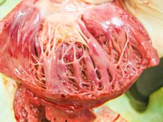 Bruised heart muscle due to fatal blood loss (see the darkened red areas) Forensic Anthropology, Dura Mater, Medical Pictures, Heart Muscle, Forensic Science, Criminology, Med School, Anatomy And Physiology, Human Body