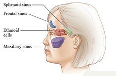Herbal Remedies For Sinus