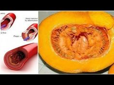 Goodbye Cholesterol, Blood Glucose, Lipids And Triglycerides.Goodbye Cholesterol, Blood Glucose, Lipids And Triglycerides. Cholesterol Symptoms, Healthy Cholesterol Levels, Lower Your Cholesterol, Cholesterol Diet, Healthy Life, Healthy Recipes, Free Recipes, Natural Treatments, Diets
