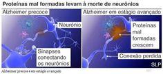 Cientistas divulgaram os primeiros detalhes de como um novo medicamento pode retardar o avanço da doença de Alzheimer em suas primeiras fases