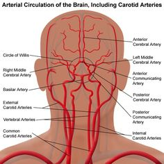 What is carotid artery disease? Carotid artery disease, also called carotid artery stenosis, occurs when the carotid arteries, which are the main blood ves Natural Cure For Headache, Headache Cure, Home Remedy For Headache, Headache Remedies, Migraine, Arteries Anatomy, Brain Anatomy, Medical Anatomy, Human Anatomy And Physiology