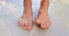 """""""What say ye gout experts?"""" a content analysis of questions about gout posted on… """"What say ye gout experts?"""" a content analysis of questions about gout posted on… Gota, Gout Recipes, How To Cure Gout, Gout Remedies, How Do You Stop, Content Analysis, Inflammatory Arthritis, How To Get Rid Of Gnats, Chronic Kidney Disease"""