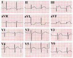 ekg chart paper b-ecg-p10 @ www.cardiologyforless.com