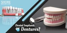 Struggling with broken Then it is time to find out the right treatment for you. Know more and understand the difference between and before you get one. Broken Teeth, Dental Implants, Get One, How To Find Out