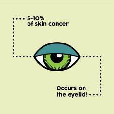 Eyelids are HIGHLY susceptible to skin cancer. Protect your eyes by wearing sunglasses or applying sunscreen that is especially designed for the sensitive skin around the eyes! #ZionsvilleEyecare
