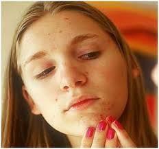 Remedios caseros para eliminar las manchas blancas en la cara