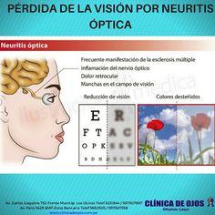 Clínica de Ojos Oftalmic Láser: PÉRDIDA DE LA VISIÓN POR NEURITIS ÓPTICA
