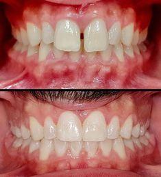 Teeth Implants, Dental Implants, Severe Tooth Pain, Teeth Whitening Cost, Dental Costs, Dental Bridge Cost, Family Dental Care, Dental Fillings, Dental Braces