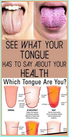 What Your Tongue is Trying to Tell You About Your Health Pitta, Medicine Book, Herbal Medicine, Natural Medicine, Holistic Medicine, Chinese Medicine, Medicine Doctor, Ayurvedic Medicine, Ayurveda