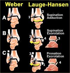 Clasificación de Weber en las fracturas del tobillo. Visítenos en la Clínica de Artrosis y Osteoporosis www.clinicaartrosis.com PBX: 6836020, Mobil: 317-5905407 en Bogotá - Colombia.