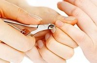 Zanokcica czyli zastrzał: przyczyny, objawy i leczenie zanokcicy