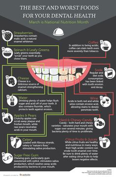 Worst Foods for Your Teeth - Women Fitness Magazine Worst Foods for Your Teeth - Worst Foods for Your Teeth You Should Stay Away From : Tooth decay and poor oral health is a major problem. In fact, about 91 percent of American adults Teeth Health, Healthy Teeth, Oral Health, Dental Health, Health Diet, Healthy Foods, Dental Posters, Dental Design, Dental Facts
