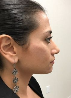 After photo of female treated with Restylane Lyft for Cheek Contouring Cheek Contouring, Breast, Cosmetics, Drop Earrings, Face, Drop Earring, The Face, Faces, Facial